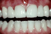 Whitening_A